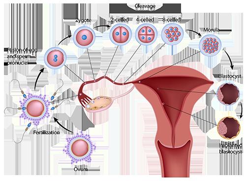 Sperm eggs ivf icsi treatment